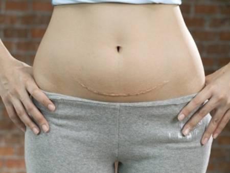 chuyển dạ sinh thường, cơn co tử cung, cơn co tử cung tăng, cơn co tử cung giảm, chuyển dạ, sinh khó, khó sinh, chuyển mổ lấy thai, nguy cơ