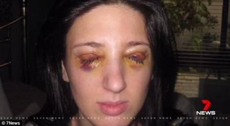 chuyện lạ, căn bệnh kỳ lạ, 3 ngày nhắm mắt, 3 ngày mở mắt, cua so tinh yeu