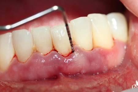 răng, bọc răng sứ, đau răng, cua so tinh yeu