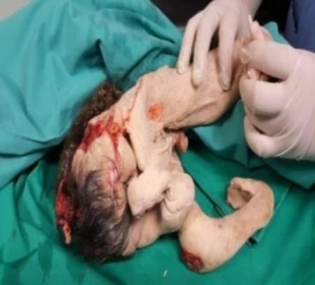 bào thai đã chết, thai trong thai, chuyện lạ đó đây, cua so tinh yeu