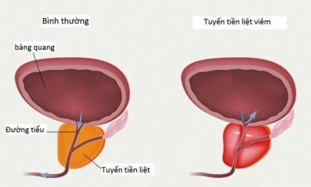 bệnh của nam giới, viêm tuyến tiền liệt, sức khỏe, cua so tinh yeu