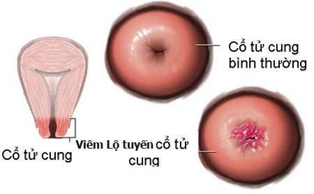 viêm lộ tuyến cổ tử cung, hiếm muộn, vô sinh, cua so tinh yeu