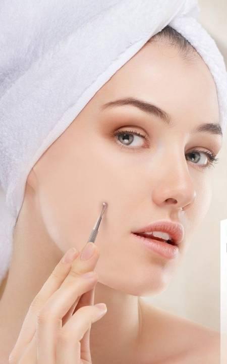 chăm sóc da và trị mụn, trị mụn, mụn đầu đen, cua so tinh yeu