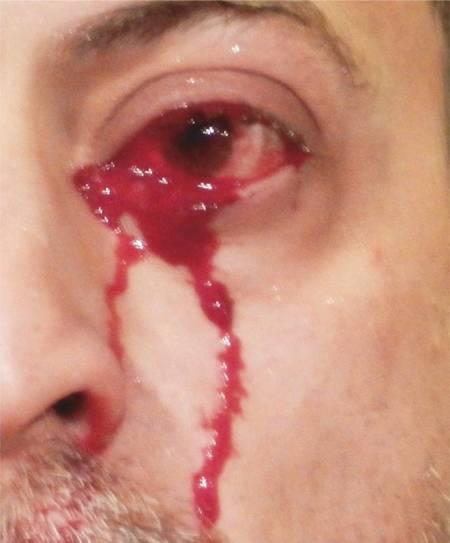 Chuyện lạ, người đàn ông, khóc ra máu, cửa sổ tình yêu.