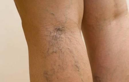 Cách ngăn chặn tĩnh mạch mạng nhện trên da, cua so tinh yeu