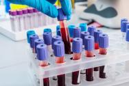 Xét nghiệm theo dõi giảm tiểu cầu trong bệnh sốt xuất huyết