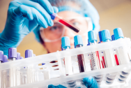 Xét nghiệm PCR trong chẩn đoán các bệnh lây truyền