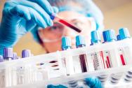 Chẩn đoán sùi mào gà thông qua xét nghiệm máu