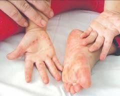 tay chân miệng, phòng bệnh, trẻ em, cua so tinh yeu