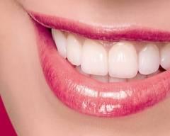 hôi miệng, cao răng, trắng răng, cách khắc phục