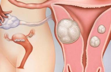 u xơ tử cung, thực phẩm, dinh dưỡng, estrogen, cua so tinh yeu