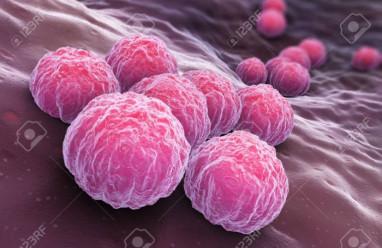 Nhiễm Chlamydia, biến chứng nguy hại, cua so tinh yeu