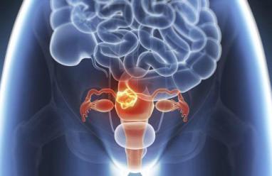 ung thư, nội mạc tử cung, ung thư nội mạc tử cung, yếu tố nguy cơ, cua so tinh yeu