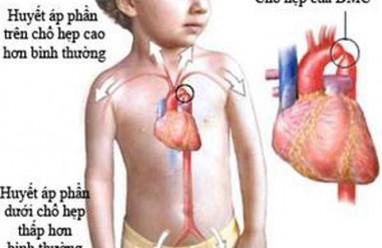 bệnh tim bẩm sinh, cua so tinh yeu