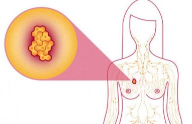 ung thư vú, dấu hiệu, nguyên nhân, giai đoạn phát triển, cua so tinh yeu