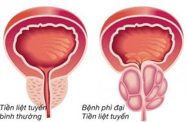 Phì đại tuyến tiền liệt có ảnh hưởng tới chuyện phòng the, tuyến tiền liệt, chuyện phòng the, cua so tinh yeu
