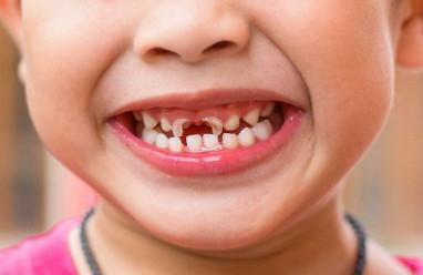 tai mũi họng, bệnh lý răng miệng, phương pháp điều trị, bệnh phổ biến, cua so tinh yeu