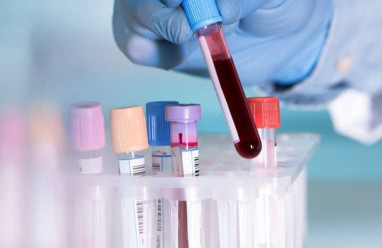 Xét nghiệm TPHA giảm khi đang điều trị bệnh giang mai?