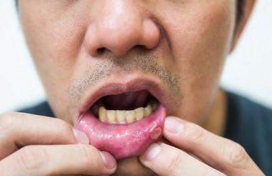 """Bị nhiệt miệng sau quan hệ với """"gái"""" có phải là do HIV???"""