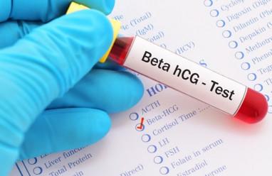Nồng độ beta hCG bị giảm sau hơn 14 ngày chuyển phôi!