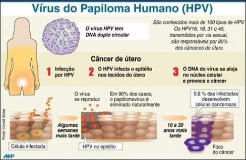Nhiễm HPV, ung thư, cơ quan sinh dục, phụ nữ, ung thư cổ tử cung, ung thư vú, tình dục,