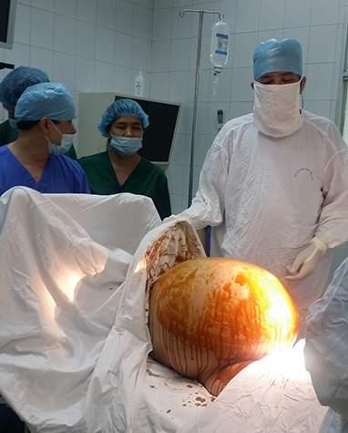 khối u khổng lồ, mang bầu, dịch nặng, vô sinh, khám thai, phẫu thuật, buồng trứng, nguy hiểm tính mạng, vợ chồng