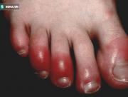 cước tay, cước chân, Căn bệnh mùa đông, thời tiết lạnh, nhiễm trùng, cua so tinh yeu
