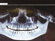 chuyện lạ, răng, răng mọc lệch, cua so tinh yeu