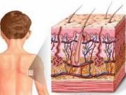 Nhận biết và điều trị viêm da Atopy, điều trị, cua so tinh yeu