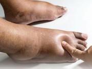 chân bị phù, nguyên nhân, cua so tinh yeu