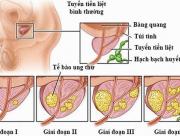 ung thư tiền liệt tuyến, bệnh nam khoa, sức khỏe sinh sản