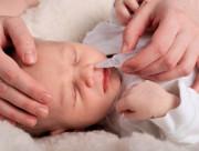 Em bé ngừng thở khi được rửa mũi bằng nước muối