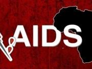 hiv, aids, bệnh nhiễm trùng cơ hội, suy giảm miễn dịch, khả năng chống chọi, hệ miễn dịch, phá hủy, tử vong