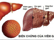 viêm gan b, bệnh viêm gan b, nguyên nhân lây bệnh viên gan b, con đường lây nhiễm viêm gan b, điều trị bệnh viêm gan b, virus gây viêm gan b, bệnh lây truyền qua đường tình dục, bệnh về gan