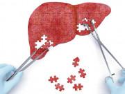 viêm gan b và ung thư gan, con đường lây nhiễm viêm gan b, biến chứng của viêm gan b, ung thư gan, nguyên nhân ung thư gan, dấu hiệu ung thư gan, biến chứng ung thư gan, điều trị ung thư gan, dự phòng ung thư gan