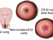 viêm lộ tuyến cổ tử cung, điều trị viêm lộ tuyến, cây thuốc điều trị viêm lộ tuyến