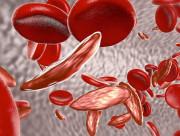 bệnh thalassemia, tan máu bẩm sinh, xét nghiệm, thiếu máu