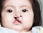 Dị tật sứt môi hở hàm ếch ở trẻ: Phương pháp chẩn đoán và chăm sóc