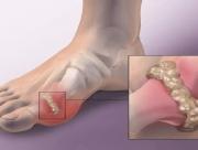 Bệnh Gout và nỗi lo yếu sinh lý
