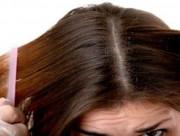 tóc, chăm sóc tóc, da đầu, trị gàu, hành tây, lưu ý khi gội đầu