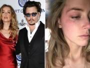 Johnny Depp, dàn xếp, li dị, ly hôn, Amber Heard