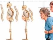 loãng xương, phụ nữ mãn kinh, bổ sung canxi, cua so tinh yeu