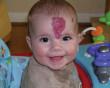 Bướu máu trẻ em,: hoang mang, chủ quan, điều trị, biểu hiện, triệu chứng, cua do tinh yeu