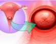 viêm cổ tử cung, Bệnh phụ khoa, Khả năng sinh sản, cua so tinh yeu