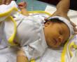 Trẻ sơ sinh, vàng da, Dấu hiệu, cách chữa trị, cua so tinh yeu