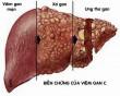 viêm gan C, nguy cơ cao, cua so tinh yeu