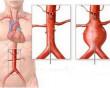 đau lưng, bệnh cần đề phòng khi đau lưng, đau lưng bệnh gì, cua so tinh yeu