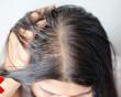 tóc ướt, sức khỏe tóc, tóc khỏe, da đầu, bệnh lý về da