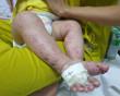 tay chân miệng, chăm sóc trẻ, vệ sinh ở trẻ, khử trùng, làm cha mẹ