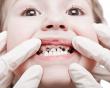 Bệnh sâu răng ở trẻ và cách phòng ngừa